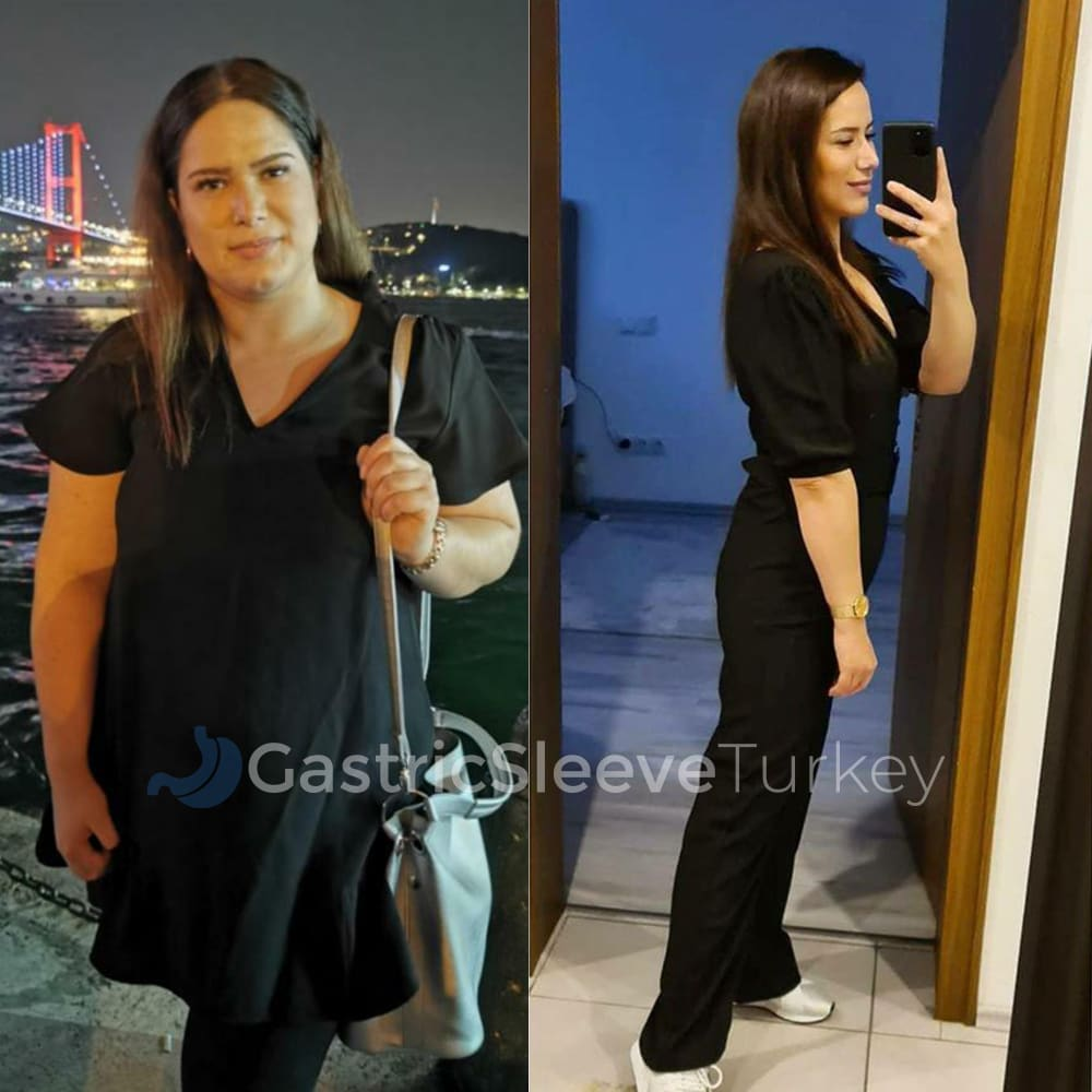 sumeyye-after-12-months-gastric-sleeve