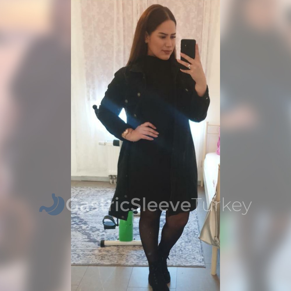 sumeyye-after-6-months-gastric-sleeve
